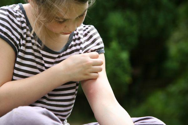 szúnyogcsípés (szúnyogcsípés, )