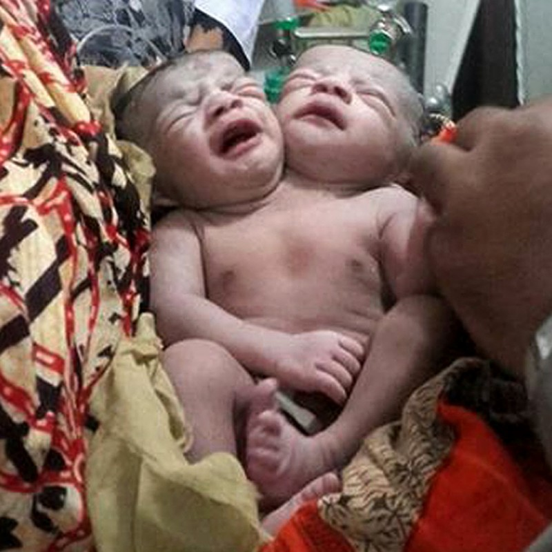 A Bangladeshi baby girl born with two heads receives medical care at a hospital in Brahmanbaria, some 120 kms east of capital Dhaka on November 12,  2015.   Doctors at a Bangladesh hospital were treating a baby girl born with two heads, medical officials and the newborn's father said. The baby was born late November 11, 2015 and is now being treated for breathing difficulties after being shifted to the intensive care unit of the country's largest hospital in Dhaka.  AFP PHOTO