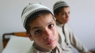 ISLAMABAD, PAKISTAN - MAY 6:  Two siblings Abdul Rasheed (L) and Shoaib Ahmed (R), continuing their daily life during day but collapse into a vegetative state, paralysed and unable to talk, at night, are seen at hospital in Islamabad, Pakistan on May 6, 2016. Reason and cure of illness can't be known. Doctors at a hospital in Islamabad carrying out medical tests to understand the reason behind the brothers' bizarre symptoms. Metin Aktas / Anadolu Agency