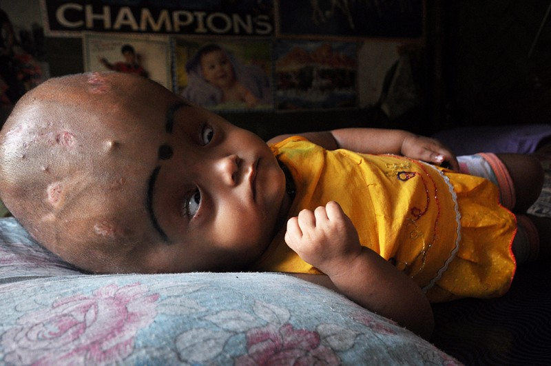 18-month-old Roona Begum who suffers from a rare condition called hydrocephalus - known as water on the brain - sleeps at a hut in Jirania village on the outskirts of Agartala, the capital of northeastern state of Tripura on April 13, 2013. It grew to 94 centimetres - three times the size of an average baby - and the skin was pulled so tight across her face she could barely close her eyes. But now Roona's parents are heralding the miracle transformation by their baby into a 'happy, playful little girl' after a crowd funding website, set up by two complete strangers, paid for a series of operations. (EyePress/Abhisek Saha)