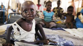 Aleo Tong (1), who suffers severe malnutrition, rests on a bed at the MSF Nutrition centre in Aweil Hospital, on 2 August, 2016. The low rainfall in 2015, the economic crisis and the inflation in the country and a measles outbreak have deteriorated the humanitarian situation in Aweil. 845,000 people, 60% of the population, are in crisis or in emergency food situation. Malnutrition rates are above 30%. Authorities estimate that over 60,000 people from Aweil have fled to Sudan in 2016 due to shortages of food.    / AFP PHOTO / ALBERT GONZALEZ FARRAN