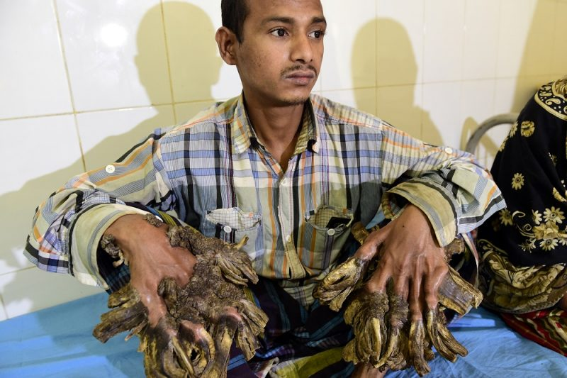 """Abul Bajandar, 26, dubbed """"Tree Man"""" for massive bark-like warts on his hands and feet, sits at Dhaka Medical College Hospital in Dhaka on January 31, 2016. A Bangladeshi autodriver dubbed """"Tree Man"""" for massive bark-like warts on his hands and feet will finally have surgery to remove the growths that first appeared 10 years ago, a hospital said on January 31, 2016. The massive warts, which first started appearing when he was a teenager but began spreading rapidly four years ago, have been diagnosed as epidermodysplasia verruciformis, an extremely rare genetic skin disease that makes the person vulnerable to warts.  AFP Photo/ Munir uz ZAMAN / AFP PHOTO / MUNIR UZ ZAMAN AND Munir UZZAMAN"""