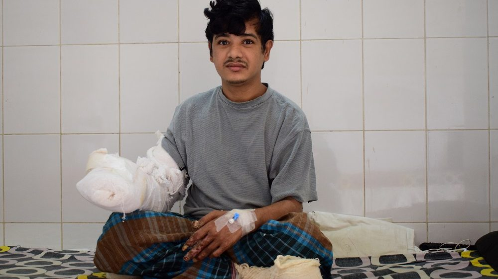 """In this photograph taken on January 4, 2017, Bangladeshi man Abul Bajandar, widely known as 'Tree Man' for his rare disease, relaxes on a ward at The Dhaka Medical College Hospital in Dhaka.  A Bangladeshi father dubbed the """"tree man"""" because of the bark-like warts that once covered his body will soon be able to leave hospital after surgery being hailed as a milestone in treating one of the world's rarest diseases. / AFP PHOTO / Sam JAHAN"""