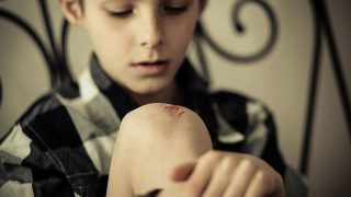 Close up Seated Handsome Young Boy Hugging his Leg While Looking at his Knee with Scratches Seriously
