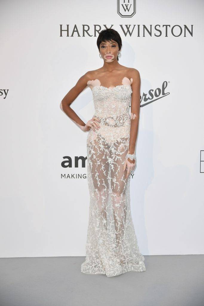 CAP D'ANTIBES, FRANCE - MAY 26: Winnie Harlow attends the Amfar Gala at Hotel du Cap-Eden-Roc in Cap d'Antibes, France on May 26, 2017.  Philip Rock / Anadolu Agency