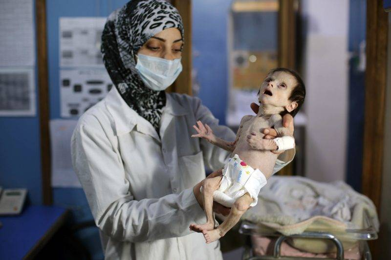 """A Syrian infant suffering from severe malnutrition is carried by a nurse at a clinic in the rebel-controlled town of Kafr Batna, in the eastern Ghouta region on the outskirts of the capital Damascus, on October 21, 2017. / AFP PHOTO / Amer ALMOHIBANY / """"The erroneous mention[s] appearing in the metadata of this photo by Amer ALMOHIBANY has been modified in AFP systems in the following manner: [---] instead of [---]. Please immediately remove the erroneous mention[s] from all your online services and delete it (them) from your servers. If you have been authorized by AFP to distribute it (them) to third parties, please ensure that the same actions are carried out by them. Failure to promptly comply with these instructions will entail liability on your part for any continued or post notification usage. Therefore we thank you very much for all your attention and prompt action. We are sorry for the inconvenience this notification may cause and remain at your disposal for any further information you may require."""""""