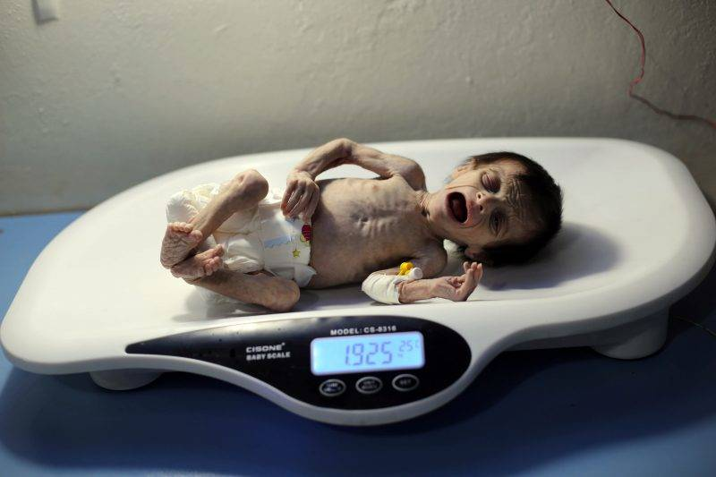 A Syrian infant suffering from severe malnutrition is being weighed at a clinic in the rebel-controlled town of Kafr Batna, in the eastern Ghouta region on the outskirts of the capital Damascus, on October 21, 2017. / AFP PHOTO / Amer ALMOHIBANY