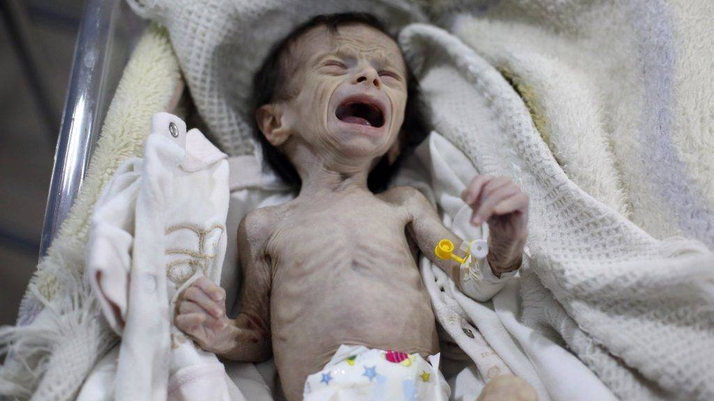 A Syrian infant suffering from severe malnutrition is seen at a clinic in the rebel-controlled town of Kafr Batna, in the eastern Ghouta region on the outskirts of the capital Damascus, on October 21, 2017. / AFP PHOTO / Amer ALMOHIBANY