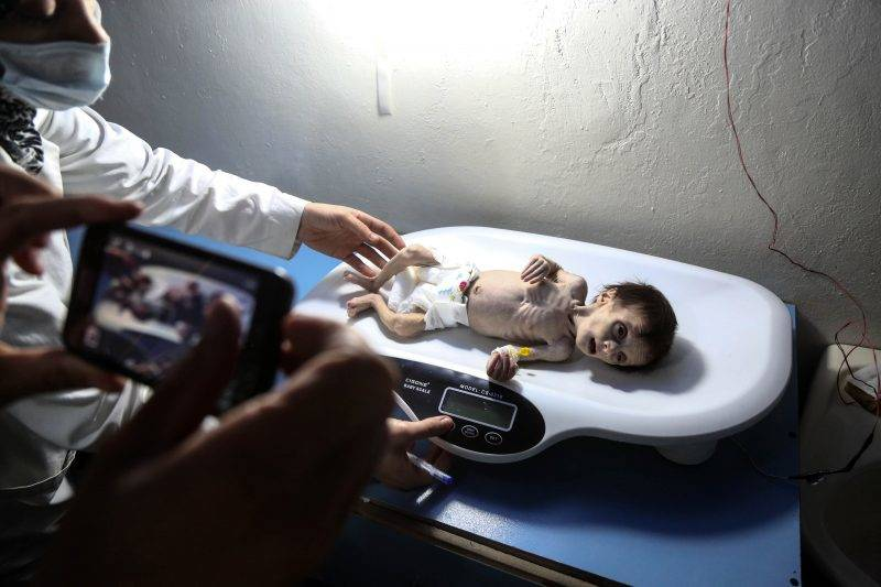 """A Syrian infant suffering from severe malnutrition is being weighed at a clinic in the rebel-controlled town of Hamouria, in the eastern Ghouta region on the outskirts of the capital Damascus, on October 21, 2017. / AFP PHOTO / Amer ALMOHIBANY / """"The erroneous mention[s] appearing in the metadata of this photo by Amer ALMOHIBANY has been modified in AFP systems in the following manner: [Hamouria] instead of [Kafr Batna]. Please immediately remove the erroneous mention[s] from all your online services and delete it (them) from your servers. If you have been authorized by AFP to distribute it (them) to third parties, please ensure that the same actions are carried out by them. Failure to promptly comply with these instructions will entail liability on your part for any continued or post notification usage. Therefore we thank you very much for all your attention and prompt action. We are sorry for the inconvenience this notification may cause and remain at your disposal for any further information you may require."""""""