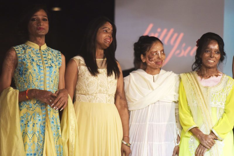 """Indian acid attack survivors pose at the end of a fashion show organised by the """"Make Love Not Scars"""" NGO in New Delhi on November 25, 2017. / AFP PHOTO / DOMINIQUE FAGET"""