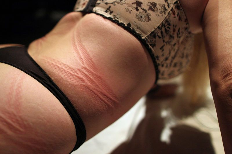LOS ANGELES, CA - MAY 10:  Rope marks are seen on a participant called Dalbin after she was suspended in ropes at a dungeon party during the domination convention, DomConLA, in the evening hours of May 10, 2013 in Los Angeles, California. The annual convention was started in 2003 by fetish professional Mistress Cyan to bring together enthusiasts of BDSM (Bondage, Discipline, Dominance/Submission, and Sadomasochism) and other fetishes.  (Photo by David McNew/Getty Images)