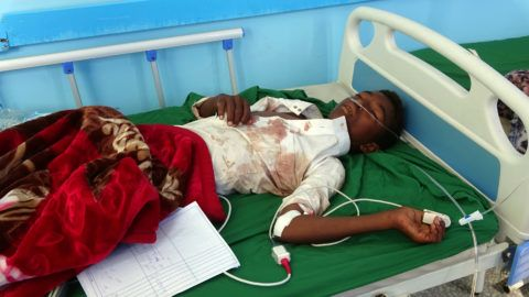A Yemeni boy, injured in an air raid on a wedding party in Yemen, receives treatment at a hospital in Yemen's Hajjah province on April 23, 2018. Dozens were killed and wounded in an air raid on a wedding party in Yemen, local officials said Monday, with Huthi rebels blaming a Saudi-led military coalition.  / AFP PHOTO / ESSA AHMED