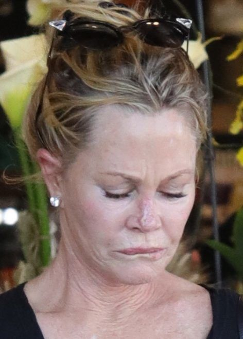 EXCLUSIVE: Melanie Griffith reveals the scars on her nose following her recent skin cancer scare as she steps out with a mystery man. The actress, 61, revealed she d had dermabrasion to remove a cancerous   If any of you have it, get it fixed. If you lay in the sun, are exposed to lots of sun, be CAREFUL,  she said. Griffith called the experience  a scary thing when you re an actress and you depend on your face for work. But I realize I have to put a Band-Aid on it, and it s fine. I just look like a dork,  she said. Griffith was spotted in LA waking back to her car after buying groceries. 21 Sep 2018 Pictured: Melanie Griffith. Photo credit: APEX / MEGA  TheMegaAgency.com +1 888 505 6342 September , 2018 *** Local Caption *** MEGA279041_003