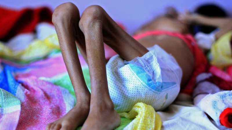 A Yemeni child suffering from malnutrition lies on a bed at a treatment centre in a hospital in the capital Sanaa on October 6, 2018. (Photo by MOHAMMED HUWAIS / AFP)