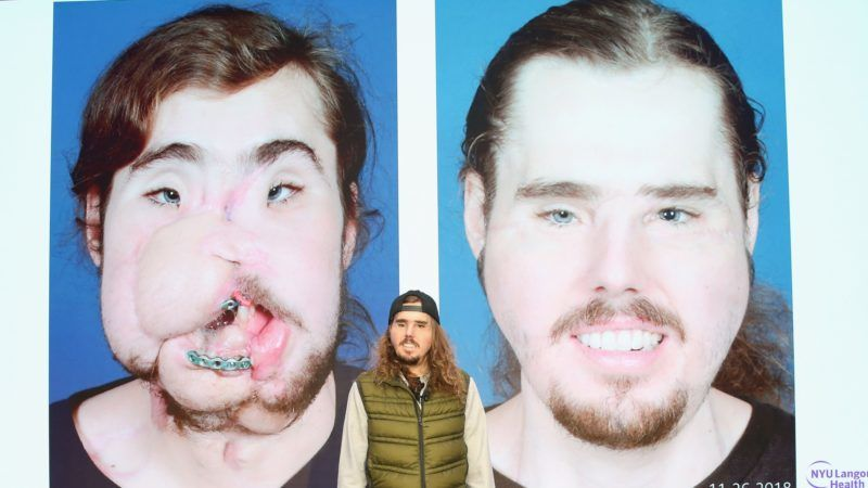 NEW YORK, NEW YORK - NOVEMBER 29: Cameron Underwood poses during the 2018 NYU Langone Face Transplant Announcement with patient Cameron Underwood at NYU Langone Medical Center on November 29, 2018 in New York City.   Monica Schipper/Getty Images for NYU Langone/AFP