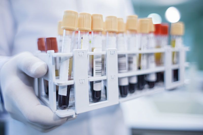 Laboratory assistant holding medical samples in rack, close up.