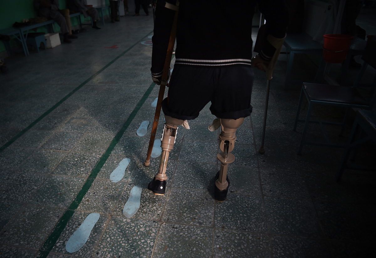 In this photograph taken on February 13, 2018 shows an Afghan amputee walking with his prosthetic legs at a hospital run by the International Committee of the Red Cross (ICRC) for war victims and the disabled in Kabul.More civilians were killed in suicide bombings and complex attacks in Afghanistan in 2017 than any previous year of the conflict, a UN report said on February 15, as militants ramp up assaults on cities. / AFP PHOTO / SHAH MARAI
